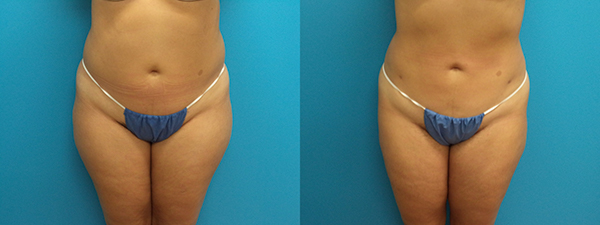 Liposuction patient 1 Before and After