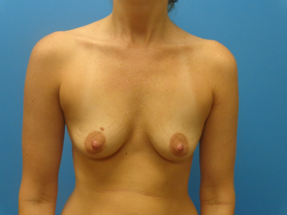 breast aug 2 before front view