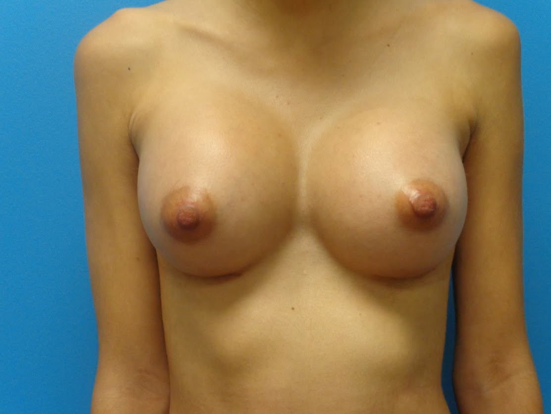 Breast Augmentation patient 3 front view after