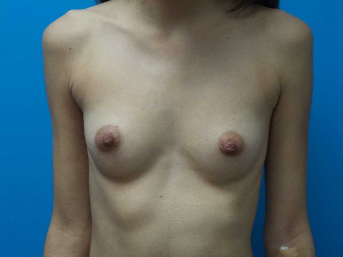 Breast Augmentation patient 3 front view before