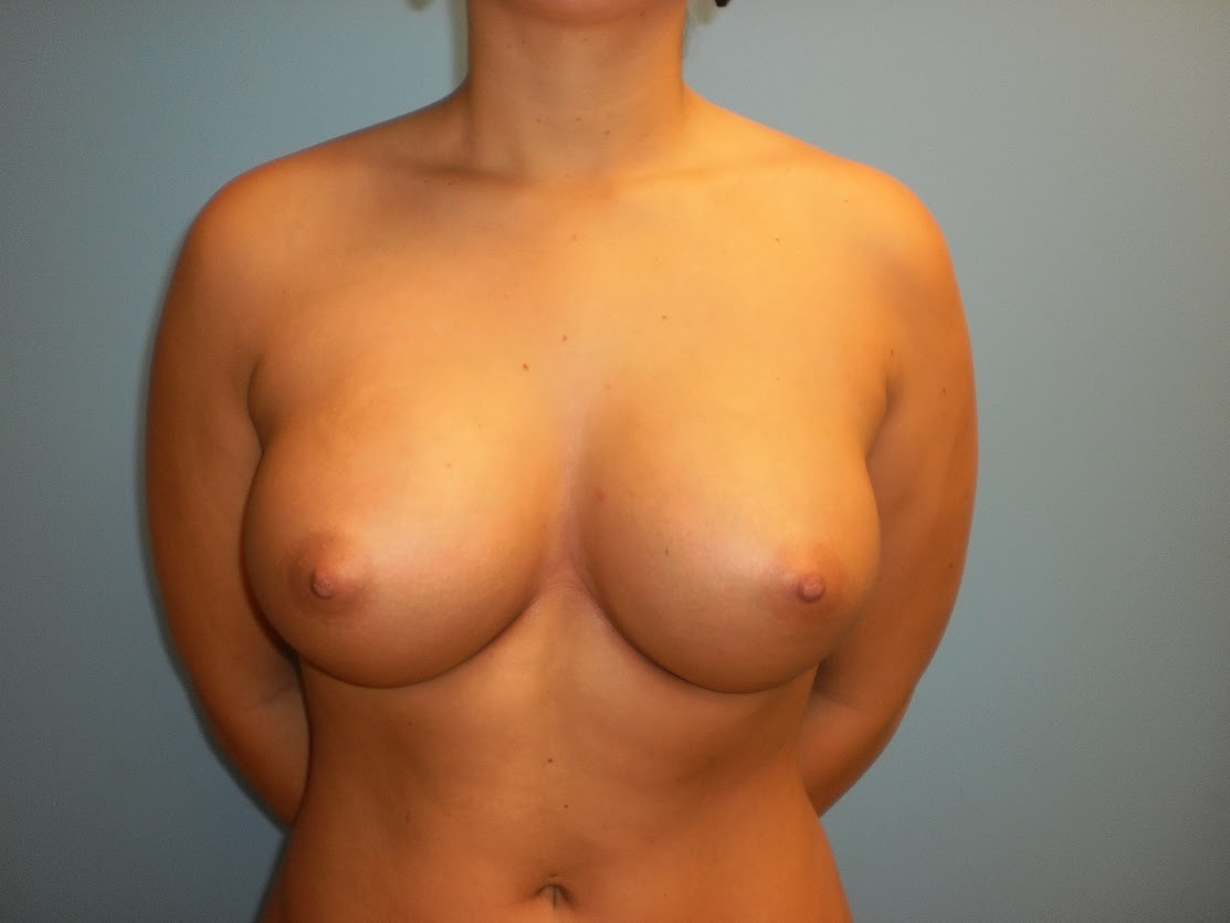 Breast Augmentation patient 2 front view after