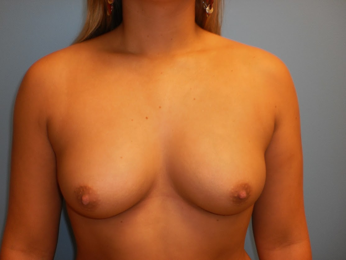 Breast Augmentation patient 2 front view before