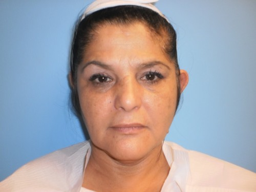 Otoplasty Patient 1 facing forward before