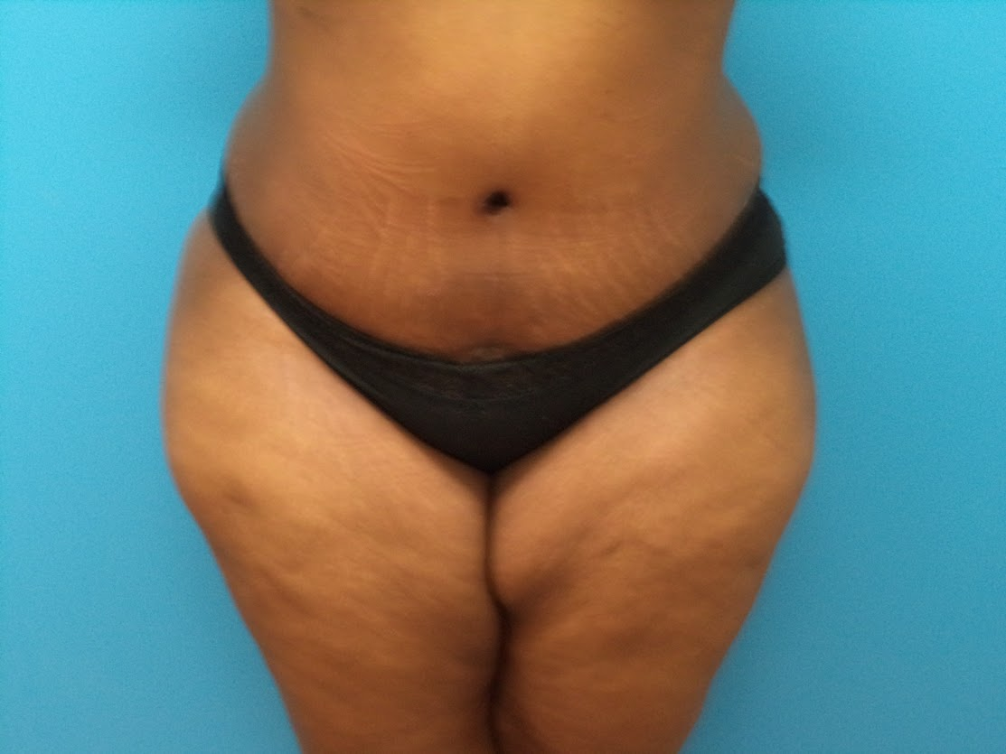 Tummy Tuck patient 1 after