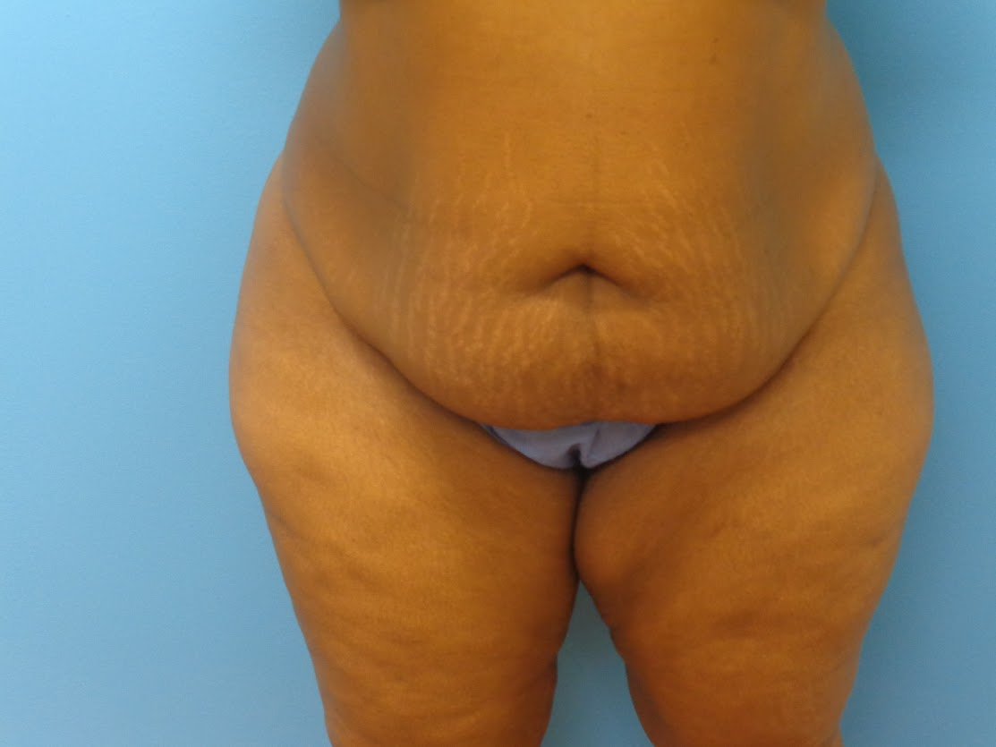 Tummy Tuck patient 1 before