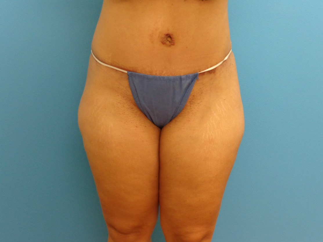 Tummy Tuck patient 3 after