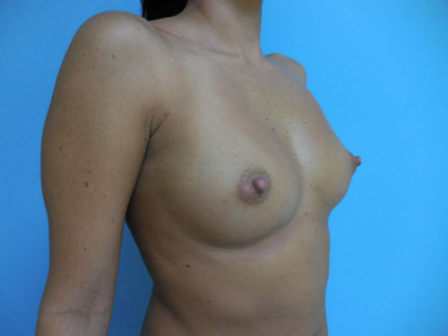 Breast Augmentation patient 4 side view before