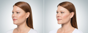 KYBELLA® before and after photos