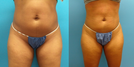 PREMIERE Center for Cosmetic Surgery Coolsculpting patient