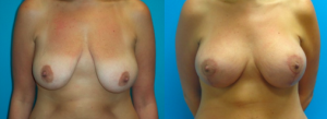 Premier Center Breast Lift patient