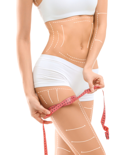 Young woman with marks for liposuction operation and measuring tape on white background. Cosmetic surgery-img-blog