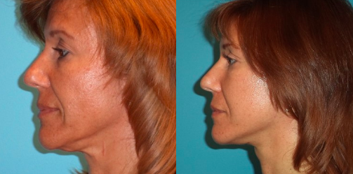 facelift-3-befor-profile-view-375x375-img-blog