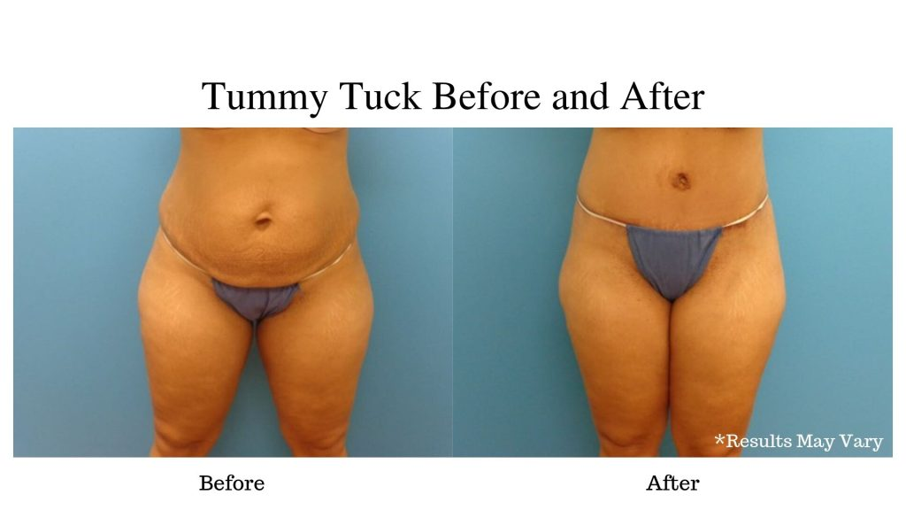 Woman before and after her tummy tuck surgery with PREMIERE Center for Cosmetic Surgery.