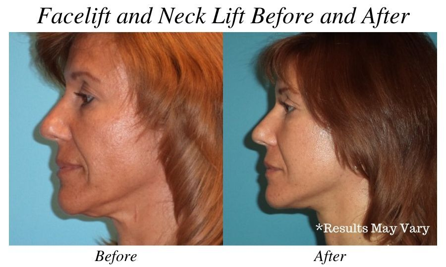 Before and after image showing the results of a facelift and neck lift surgery performed in Tampa, FL.