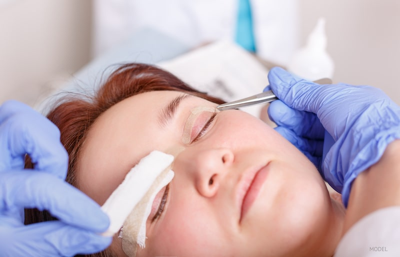 Women getting bandages removed from her upper eyelids that are common after an eyelid surgery.
